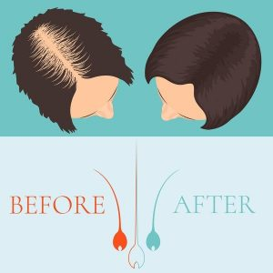 CAPIXYL (Капиксил) против выпадения волос. Уникальный комплекс.